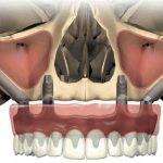Восстановление зубного ряда с помощью скуловой имплантации