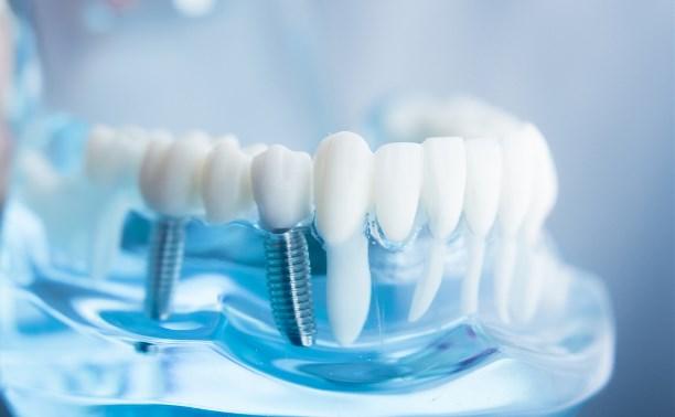 Где лучше всего делать зубные импланты?